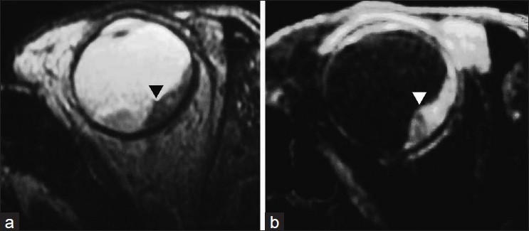 Figure 2 Magnetic Resonance Imaging Shows A Plaque Like Lesion Of Uneven Thickness Along The Posterolateral Surface Globe In Close Relation To