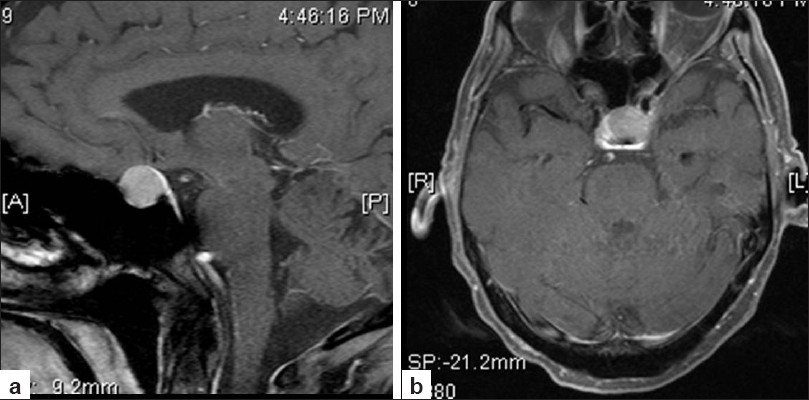Figure 3: Fat-suppressed sagittal NMR image (a) showing pituitary lesion with expanded sella pushing the optic chiasma superiorly and high-resolution, T1-weighted, contrast-enhanced, fat-suppressed axial image (b) showing enhancing sellar lesion