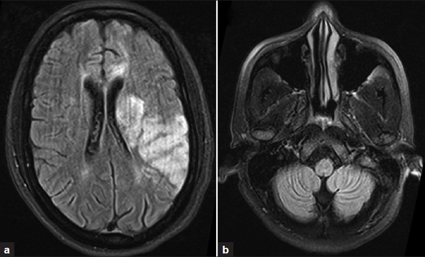 Figure 1: MRI of the brain (a) showing altered signal intensity in the left parietal, temporal cortices and left basal ganglia. Both cerebellar hemispheres (b) are normal