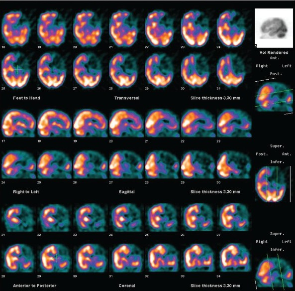 Figure 2: Tc99m-ECD brain perfusion SPECT Images in transaxial, sagittal and coronal views showing moderate perfusion defects in the right occipital cortex (posterior circulation) along with the parietal, temporal and the thalamus