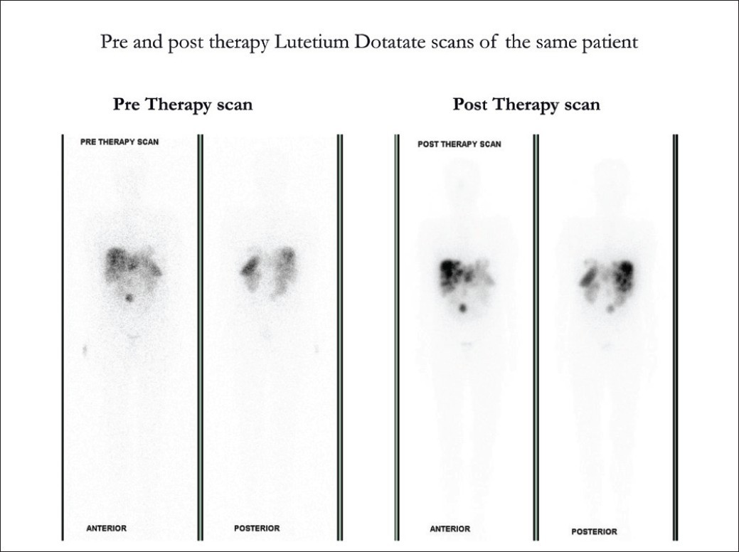 Figure 5: Avidity of uptake on the post therapy scans in the lesions demonstrated on the pre-therapy <sup>177</sup>Lu DOTATATE scan, were evident with high uptake on the post therapy scan