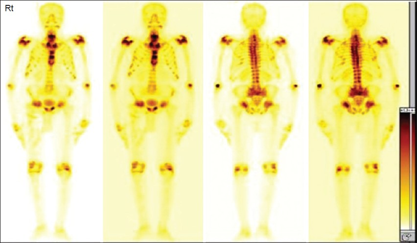 Figure 1: Tc 99m MDP whole body scintigraphy in dual intensity showing scintigraphic picture of metabolic bone disease
