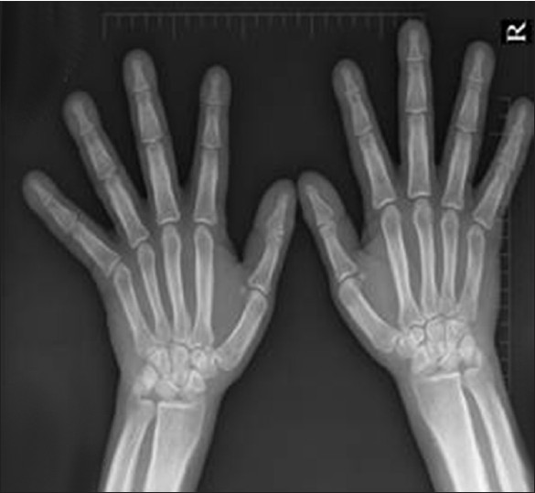 Image result for xray of hands and feet