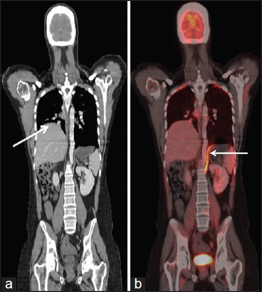 Figure 2: Coronal computed tomography (CT) image revealed elevated right hemi-diaphragm [arrow in Figure 2a], suggestive of right diaphragmatic paralysis. Fused positron emission tomography/CT image [coronal slice, arrow in Figure 2b], shows intense fluorodeoxyglucose uptake in left hemi-diaphragm. The maximum standardized uptake value of this uptake was 6.1 (normalized for body surface area)
