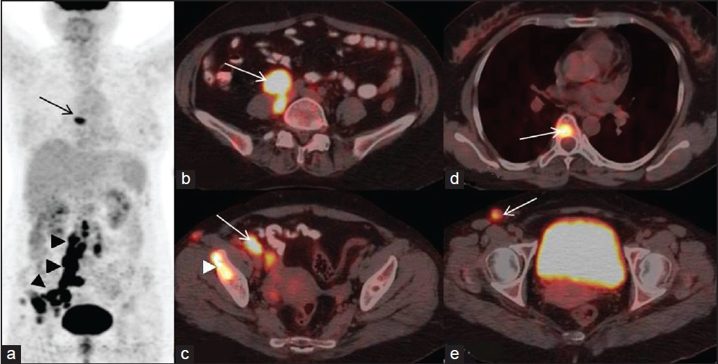 Figure 1: MIP image (a) showing intense tracer uptake in retroperitoneal and pelvic nodal chain (arrow-heads) and focal uptake in mediastinum (arrow). Axial fused PET/CT showing hypermetabolic retroperitoneal nodes (b - arrow) with (FDG) avid right pelvic (c - arrow) nodes. FDG uptake seen in the right iliac (d - arrow head), D6 vertebra (d - arrow). Also seen is hypermetabolic right inguinal node (e - arrow)