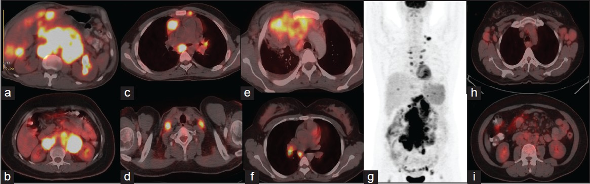 Figure 1: Transaxial F-18 fluoro-deoxy-glucose (FDG) positron emission tomography/computed tomography (PET/CT) images of two patients (a and b) with diffuse large B cell lymphoma (DLBCL) showing intense F-18 FDG uptake with maximum standardized uptake value (SUV<sub>max</sub>) of 20.3 and 21.6 respectively. Transaxial F-18 FDG PET/CT images of a patient with Hodgkins lymphoma (c and d) showing intensely F-18 FDG avid lymph nodes in the mediastinum and neck (SUV<sub>max</sub> = 14.2). The images discusses about F-18 FDG avidity of lymphomas. In general high grade lymphomas are known to be F-18 FDG avid with higher SUVmax and low grade lymphomas are known to be less F-18 FDG avid with lesser SUVmax values.<sup>[1]</sup> According to International Harmonization Project recommendations HL, DLBCL, Follicular lymphoma, Mantle cell lymphoma are considered to be routinely F-18 FDG avid.<sup>[2]</sup> anaplastic large cell lymphoma (ALCL) is also considered as 100% F-18 FDG avid according to recent literature<sup>[3]</sup> and images (e and f) are consistent with this, showing intense F-18 FDG uptake in lymph nodal mass in the mediastinum and mediastinal lymph nodes in two patients with ALCL. Follicular lymphoma, which is a low grade lymphoma is also known to be routinely F-18 FDG avid<sup>[4]</sup> and the maximum intensity projection image of a patient with Follicular lymphoma (g) shows intensely F-18 FDG avid lymph nodal mass in the abdomen (SUV<sub>max</sub> = 21.2). on the contrary low grade lymphomas like small lymphocytic lymphoma (SLL) show very low F-18 FDG avidity as can be noted in transaxial images of the thorax and abdomen (h and i) of a patient with SLL involving b/l axillary and multiple retroperitoneal lymph nodes (SUV<sub>max</sub> = 3.4). Due to variable FDG uptake in low-grade lymphomas, staging PET/CT is required to demonstrate the FDG uptake for response assessment at a later stage
