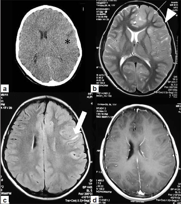 Figure 1: Non-contrast computed tomography of head (a) Axial shows diffuse enlargement of left cerebral hemisphere (*) with midline shift towards right while the right hemisphere is normal. Non-contrast magnetic resonance imaging T2W (b) Images (axial) show diffuse gyral thickening (thin arrow) in the left cerebrum causing midline shift and scalloping of inner table (arrow head) of left calvarium. White matter in both cerebral hemispheres show normal myelination. Linear hyperintensities involving the subcortical U fibers of left fronto-parietal region seen on fluid attenuation inversion recovery image (c) Post-gadolinium T1W image in axial plane (d) shows no abnormal enhancement