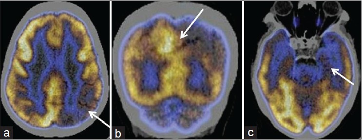 Figure 1: (a) Transaxial fused F-18 fluorodeoxyglucose positron emission tomography/computed tomography images in a case of mild cognitive impairment with mini mental state examination of 25 showing hypometabolism in the left parietal cortices (arrow). (b) Coronal fused FDG-PET/CT image showing hypometabolism in the left precuneus (arrow) and in the left parietal cortex. (c) Transaxial fused FDG-PET/CT images showing hypometabolism in the left mesial temporal cortices
