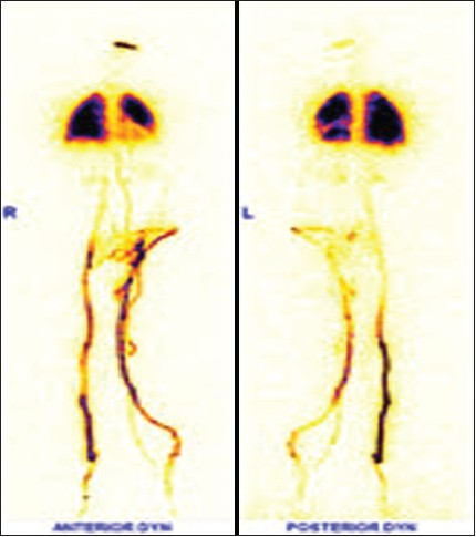 Figure 16: Radionuclide venography of bilateral lower limbs showing significant collateral channels in left lower limb veins