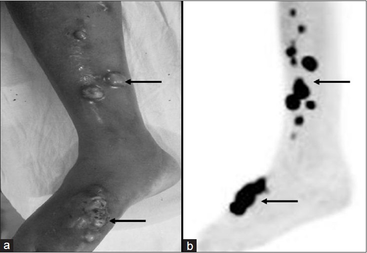 Figure 1: Multiple nodular lesions (arrows) with evidence of ulceration on the medial aspect of the right leg and foot (a), which show increased fluorodeoxyglucose avidity (b)