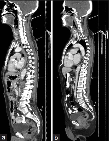 Figure 3: Sagittal image showing wavy pattern (a-arrows) in skin and subcutaneous region, which resolves on computed tomography tube realignment (b-arrows)