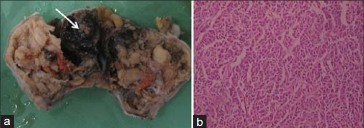 Granulosa cell tumor induced massive recurrence of post for Mural granulosa cells