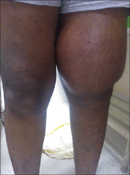 Figure 1: Photographic picture of the swelling in the left knee joint