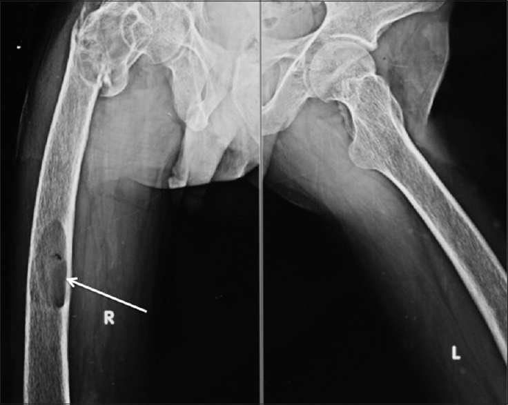 Figure 1: X-ray hip joint and bilateral femur: A lobulated lesion in the right proximal femur with a malunited intertrochanteric fracture and a well-circumscribed lytic lesions in mid-shaft of right femur that represent the osteoclastic resorption of bone