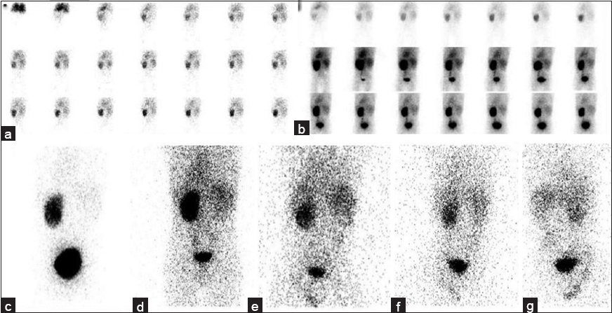 vicarious liver visualization in solitary functioning