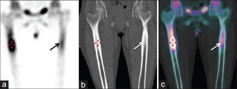 Figure 4: Coronal single photon emission computed tomography image (a) increased focal intense tracer uptake involving diaphysis of both femorii (triangulate - right; arrow - left) proximally, more on the right side, showing intramedullary sclerosis on corresponding low dose coronal CT (b), which is confirmed on fused SPECT/CT images (c)