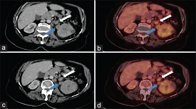 Figure 3: Axial contrast-enhanced computed tomography (a and c) and positron emission tomography-computed tomography (b and d) sections at 10 mm interval showing fluorodeoxyglucose avid enhancing tumor thrombus in the left gonadal vein (white-notched arrow) which is located anteromedial to the left ureter (blue arrow)