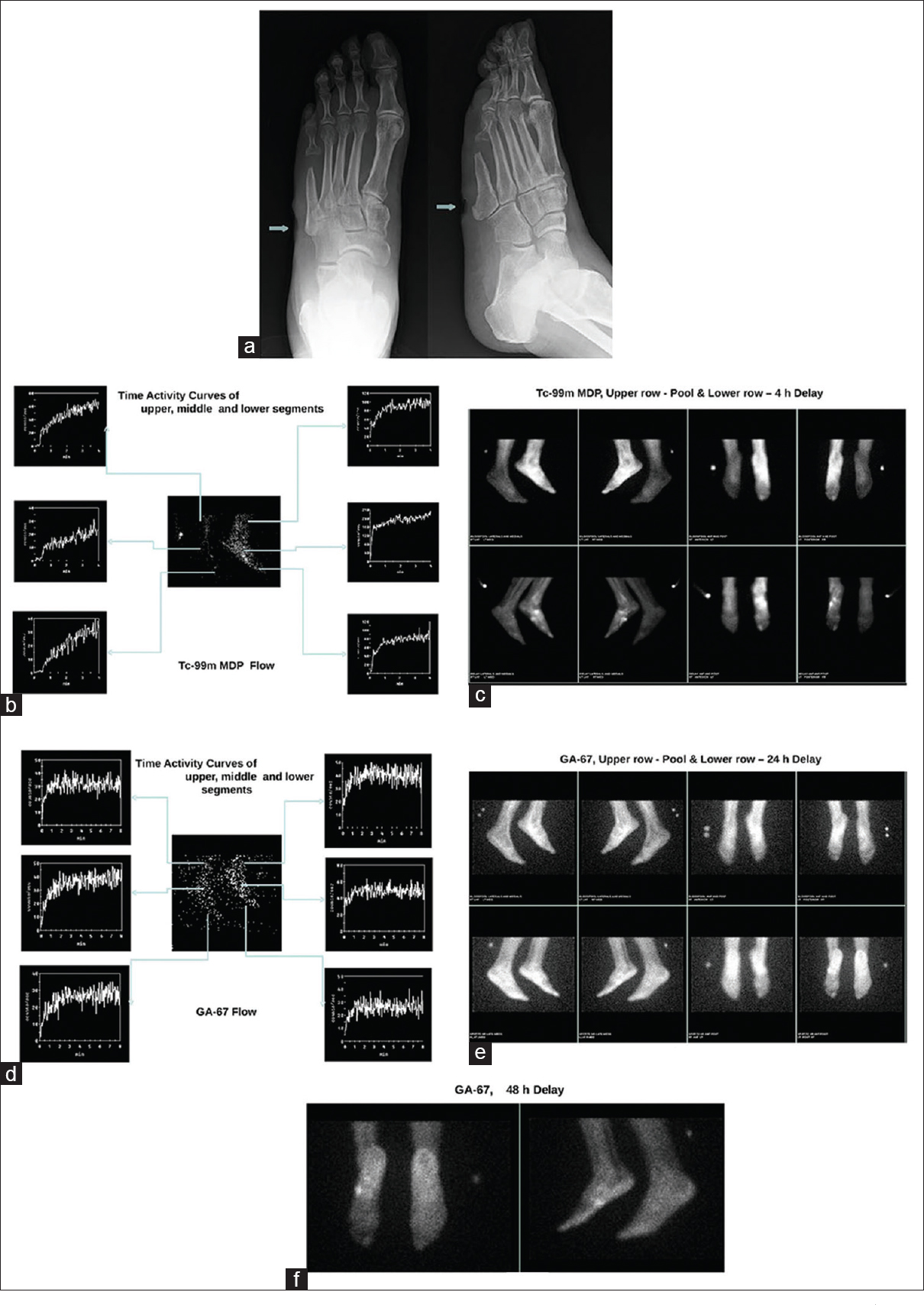 "Figure 3:(a) Plane radiograph of the left foot, reported as ""Mild soft tissue swelling and small skin ulceration at the base of the 5<sup>th</sup> metatarsal, lateral foot. No evidence of osteomyelitis."" (b) Time-activity curve after drawing region of interest in different segments of a technetium-99m-methylene diphosphonate flow image for comparison and to confirm generalized increased flow. (c) Technetium-99m-methylene diphosphonate pool and delayed images indicating generalized increased retention of radiotracer in the pool images (upper row) and focal retention of radiotracer in the region of the left 5<sup>th</sup> metatarsal base on delayed images (lower row). (d) Time-activity curve after drawing region of interest in different segments of a gallium-67 flow image for comparison and to confirm generalized increased flow. (e) Gallium-67 pool and 24 h delayed images indicating generalized increased retention of radiotracer in the pool images (upper row) and focal retention of radiotracer in the region of the left 5<sup>th</sup> metatarsal base on delayed images (lower row). (f) Gallium-67 pool and 48 h delayed images indicating focal retention of radiotracer in the region of the left 5<sup>th</sup> metatarsal base"
