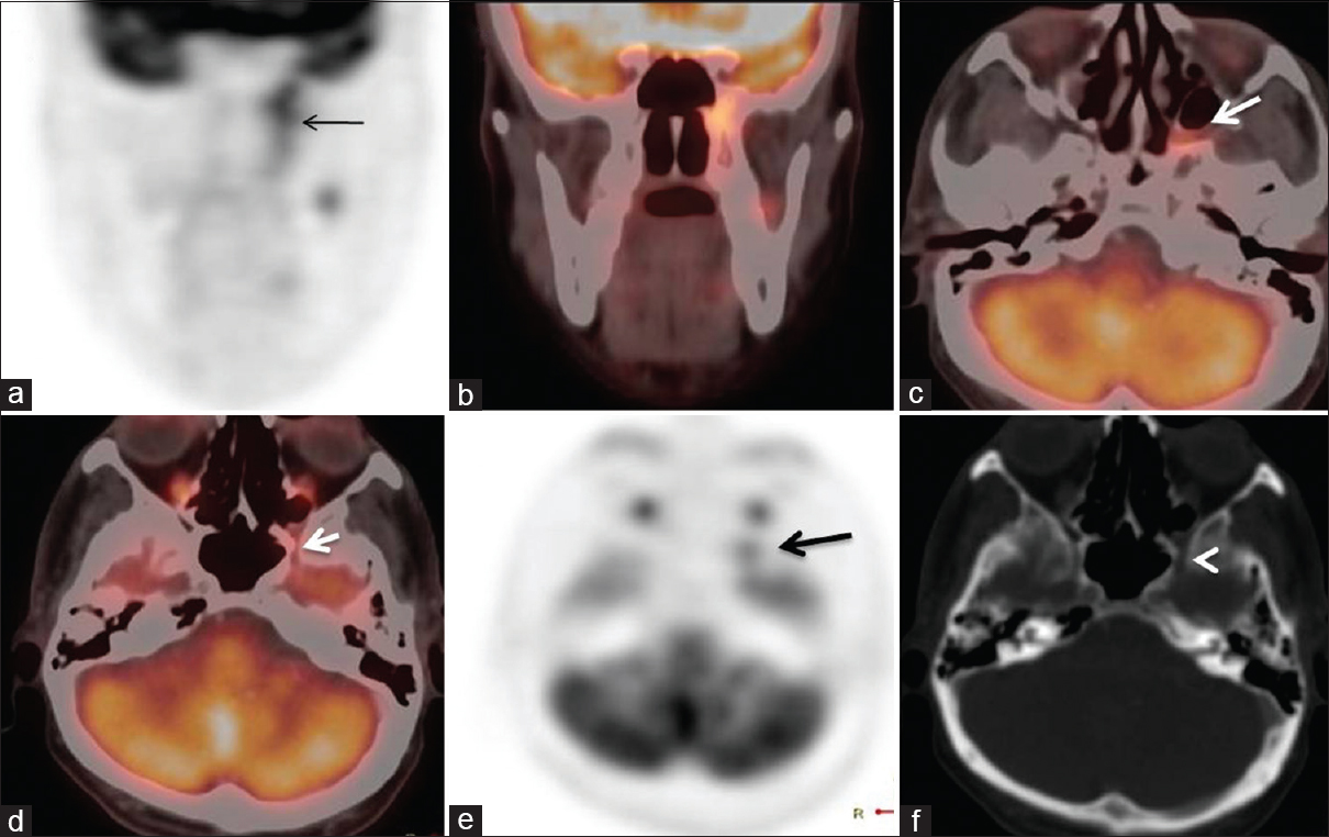 Figure 1: Perineural spread along maxillary (V2) nerve: 49-year-old male, known case of carcinoma soft palate, received radiotherapy 1 year back, now presenting with pain in the left side of face. Linear fluoro-deoxy-glucose uptake noted in the region of the left pterygomaxillary fissure on coronal fluoro-deoxy-glucose positron emission tomography (a) and coronal fused fluoro-deoxy-glucose positron emission tomography/computed tomography (b) images. Transaxial fused positron emission tomography/computed tomography images (c and d) fluoro-deoxy-glucose uptake extending into the widened left pterygopalatine fossa (long white arrow) and then into the left foramen rotundum (short bold white arrow). The asymmetric uptake in the left foramen rotundum (black arrow) is noted on transaxial positron emission tomography images (e). Widened left foramen rotundum (white arrowhead) is noted on transaxial computed tomography images (f)