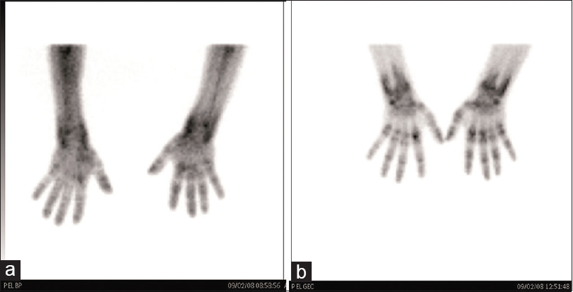 Figure 3: On bone scan of both hands, there is increased blood pool activity (a) and delayed uptake (b) in the areas of the joint involved
