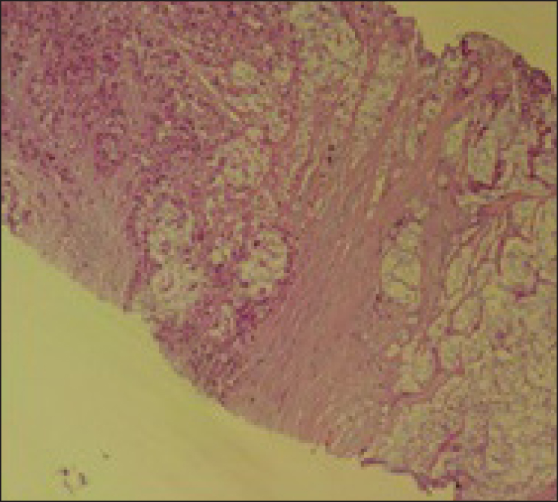 Figure 5: H and E (10×)-section of the core biopsy from the erector spinus muscle also showed tumor cells floating in pools of mucin consistent with metastatic mucinous adenocarcinoma