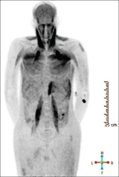 "Figure 5: Fluorine-18-fludeoxyglucose positron emission tomography demonstrating ""muscle scan"" in a hyperglycemic patient. Maximum intensity projection of an fluorine-18-fludeoxyglucose positron emission tomography in a 48-year-old male. As the patient's blood glucose was measured at 127 mg/dL before scanning, recent exercise or noncompliance with fasting state may have led to the diffuse muscle sequestration of the radiotracer, which limited detection of hypermetabolic lesions. The patient later returned for a repeat study that was diagnostic in quality"