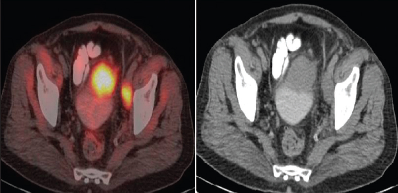 Figure 2: Positron emission tomography-computed tomography axial images showing urinary bladder mass and left external iliac lymph node metastasis; also seen is mild diffuse uptake in pelvic muscles