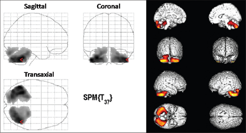 Figure 1: Transaxial, coronal, and sagittal statistical parametric mapping results (<i>p</i>=0.05 false discovery rate) confirming the hypometabolism in the cerebellar lobes
