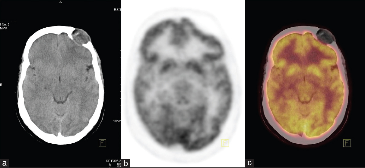 Figure 1: (a-c) A nonfluorodeoxyglucose avid well-circumscribed hypodense lesion in the left frontal bone measuring 2.3 cm × 3.0 cm causing destruction of inner table of left frontal bone and extending intracranially. (a-c) represent axial computed tomography, positron emission tomography, and fused positron emission tomography/computed tomography images respectively