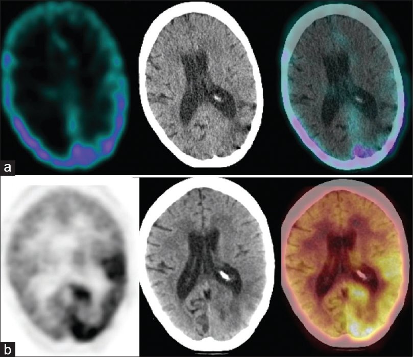 Figure 3: A 47-year-old female with left parieto-occipital anaplastic astrocytoma previously treated with surgery, radiotherapy, and chemotherapy; scans performed 48 months after the primary treatment. Single photon emission computed tomography-computed tomography (a) could not detect any abnormality while positron emission tomography-computed tomography (b) revealed diffuse fluorodeoxyglucose uptake in the left parieto-occipital region. The patient underwent reoperation. Histopathology revealed radiation necrosis