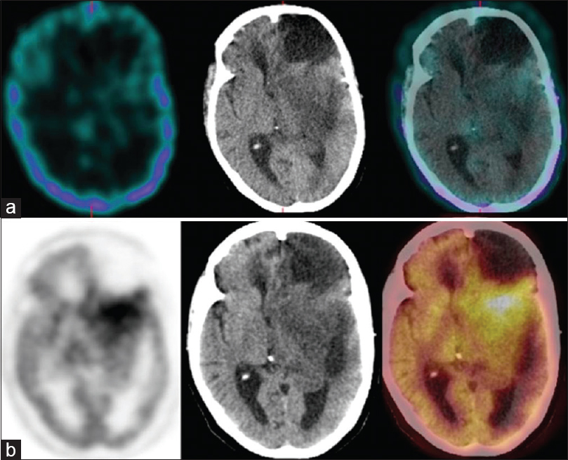 Figure 5: A 36-year-old female with left frontal astrocytoma previously treated with surgery and radiotherapy; scans performed 66 months after the primary treatment. Single photon emission computed tomography-computed tomography (a) could not detect any abnormal radiotracer localization while positron emission tomography-computed tomography (b) revealed recurrent disease in the left frontotemporal region posterior to the postoperative gliotic cavity. The patient underwent reoperation. Histopathology revealed recurrent astrocytoma. The patient died 11 months after the scans