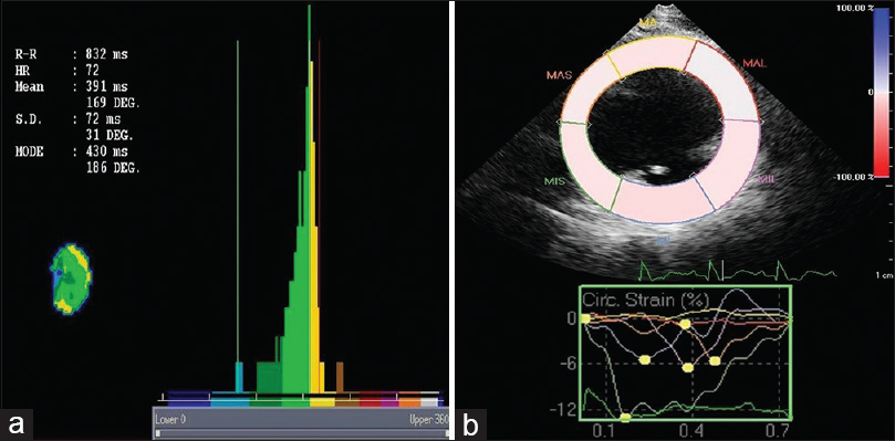 Figure 3: (a) A 25-year-old patient with left bundle branch block (QRS = 189 ms) and left ventricular ejection fraction = 20%. Equilibrium radionuclide angiography based phase image shows significant dyssynchrony (wide variation in timing of contraction among pixels on color scale). Phase histogram is wide, and standard deviation of left ventricular mean phase angle value is 31°. (b) Speckle-tracking echocardiography analysis of the same patient. Standard deviation of time-to-peak strain is 166 ms, that is, higher than the upper limit of normal (see wide scattering of yellow dots) consistent with intraleft ventricular dyssynchrony. R–R: R–R interval on electrocardiogram, HR: Heart rate, SD: Standard deviation