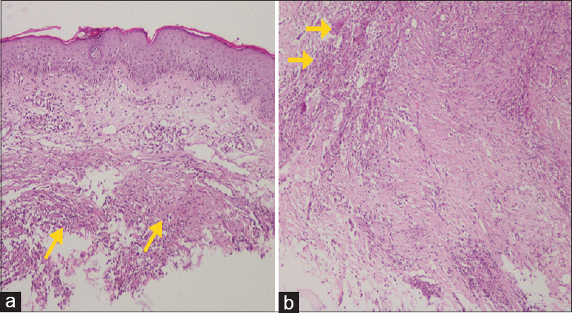 Figure 3: (a) Normal epidermis at the surface and granuloma formation (arrows) at the dermis. No necrosis was seen in granulomas (H and E, ×100), (b) Granulomas formed in the deep dermis. Multinucleated giant cells are found on the left upper corner (arrows) (H and E, ×100)
