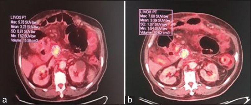 Figure 3: A 54-year-old patient with a history of Whipple operation for pancreatic head cancer adenocarcinoma. (a) Focal fluorodeoxyglucose uptake is detected at the operative bed early (1 h) axial positron emission tomography/computed tomography fusion image showing (maximum standardized uptake value E: 5.7). (b) The 2-h axial positron emission tomography/computed tomography fusion image showed increased 18F-fluorodeoxyglucose uptake (maximum standardized uptake value D: 7.1). This soft-tissue lesion was confirmed local malignant recurrence by pathology