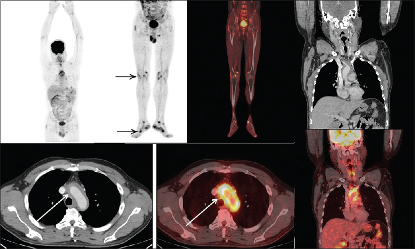 Figure 2: A 40 year-old-male with clinical diagnosis of pyrexia of unknown origin, referred to the whole-body fluorodeoxyglucose-positron emission tomography/computed tomography scan to find the cause of fever. Whole-body positron emission tomography/computed tomography scan acquired from head to toe revealed intense Grade III fluorodeoxyglucose uptake in the thoracic aorta (white arrow) and other major blood vessels with total vascular score of 17. In addition, focal intense fluorodeoxyglucose uptake was also noted in the periarticular surface of the bilateral knee and ankle joint (black arrow) suggestive of associated polymyalgia rheumatica