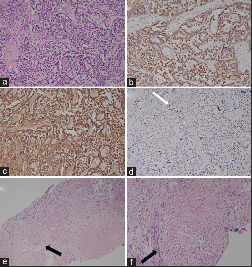 Figure 2: Histomicrophotograph of sections from gastric lesion (a), showing neuroendocrine tumor (H and E, ×100), on immunohistochemistry, tumor cells are positive for synaptophysin (b), chromogranin (c) with Ki-67 proliferative index less than 1% (d), suggesting well-differentiated neuroendocrine tumor (typical carcinoid, Grade 1). Lymph node biopsy reveals necrotizing epithelioid cell granulomatous inflammation with Langhans cell histiocytosis (e, f: black arrow)