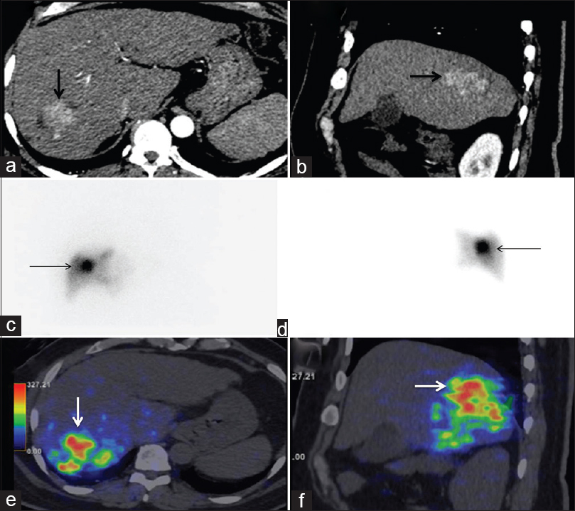 Figure 1: (a and b) Solitary arterially enhancing lesion in the right lobe involving segments VI/VII (bold black arrows). (c and d) Anterioposterior Tc-99m macroaggregated scinitigraphy showing focal increased perfusion in the right lobe (thin black arrows) with good tumor-to-normal liver uptake ratio and the absence of any significant hepatopulmonary shunting. (e and f) Post-therapy Y-90 SIR-Spheres positron emission tomography – computed tomography images showing selective intense uptake of the radio-pharmaceutical into the tumor bed (white arrows) polymerase chain reaction assay