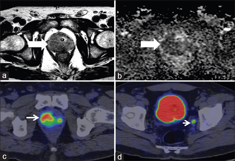 Figure 5: Concordant magnetic resonance imaging and prostate-specific membrane antigen positron emission tomography findings. Hypointense signal noted in the right peripheral zone of the prostate on T2-weighted and apparent diffusion coefficient map, PIRADS 5 (a and b, bold white arrows, respectively), intense prostate specific membrane antigen uptake (mi-prostate-specific membrane-antigen score 3) noted in the right peripheral zone, (thin white arrow, c) and 5mm left internal iliac node missed on magnetic resonance imaging (white arrow head, d). Biopsy was suggestive of adenocarcinoma Gleason's score 9